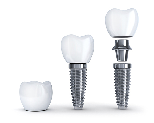 Dental Implants Pieces Diagram iStock 000077095183 Large width of 500 pixels